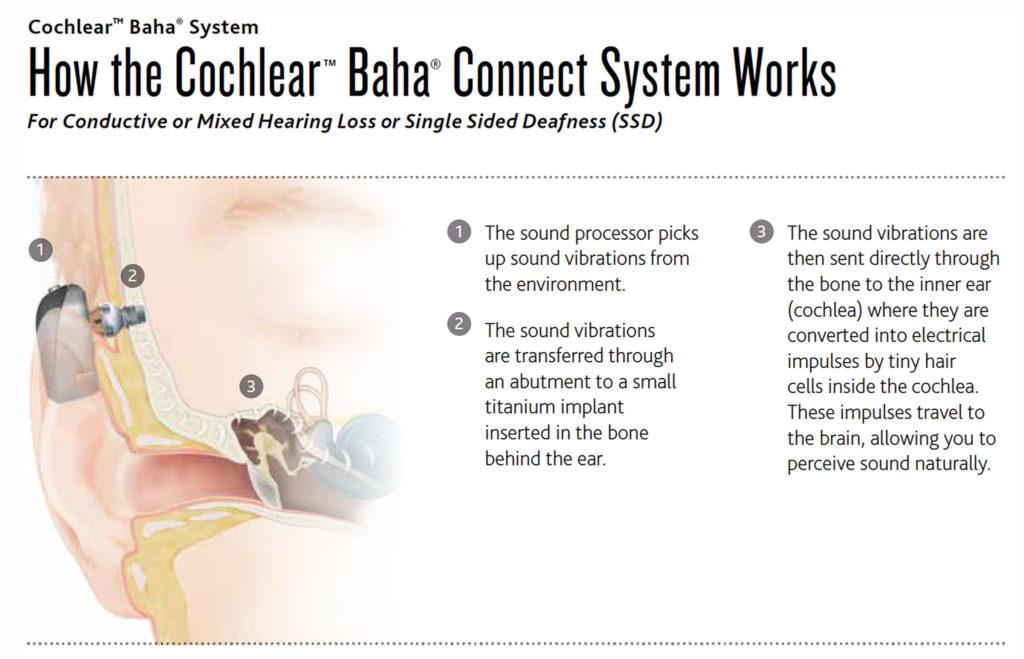 Peak ENT and Voice Center, Denver Voice Clinic, Denver ENT, Colorado ENT, Denver hearing specialists, colorado ent doctor, ent rhinoplasty specialist, Peak ENT, vocal cord dysfunction, cochlear baha system