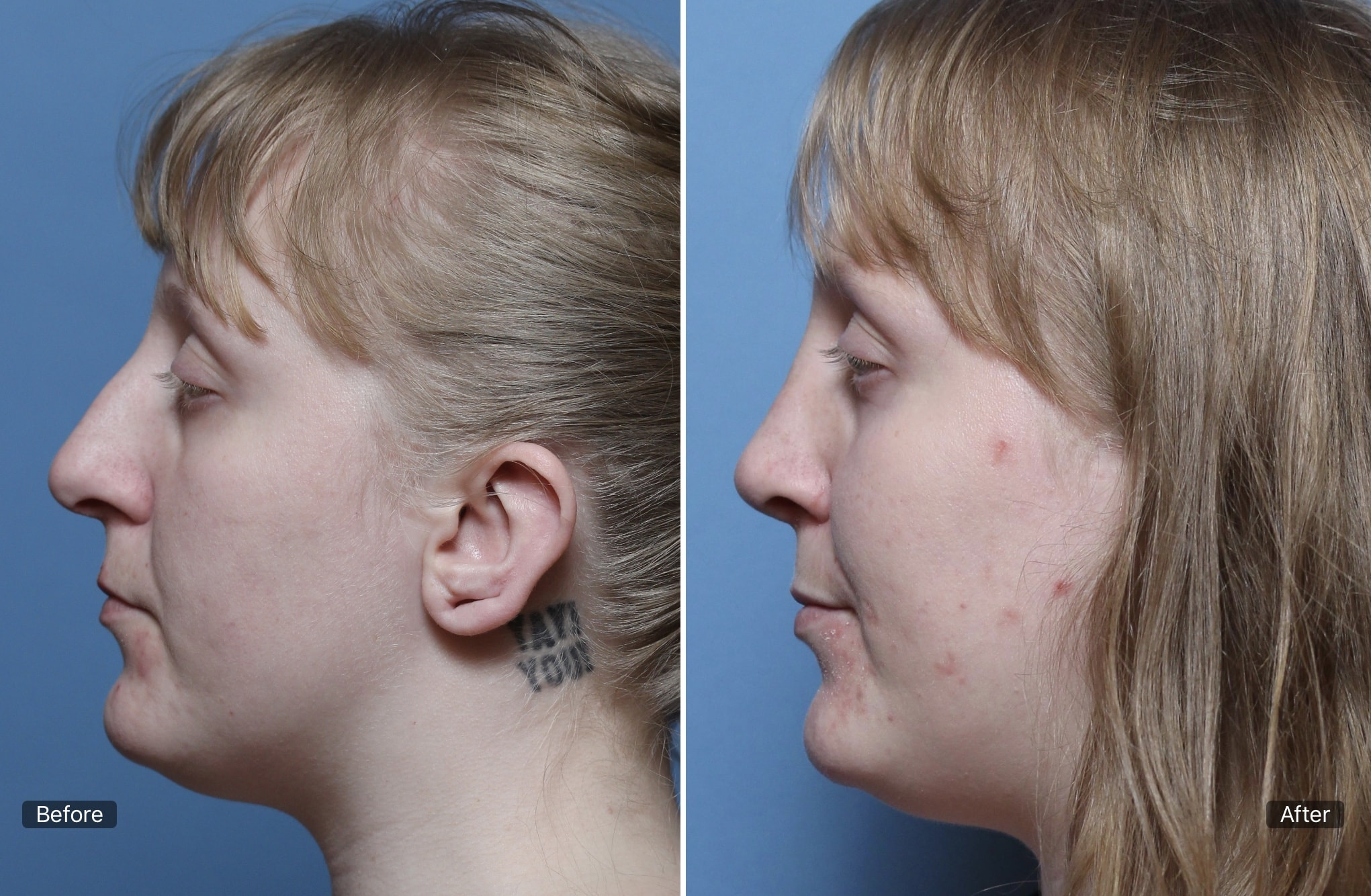 Peak ENT and Voice Center, Denver Voice Clinic, Denver ENT, Colorado ENT, Denver hearing specialists, colorado ent doctor, ent rhinoplasty specialist, Peak ENT